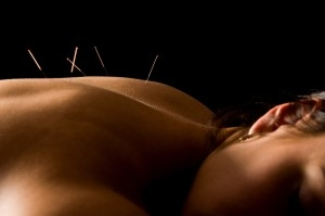 blog-what-goes-into-an-acupuncture-treatment1-300x199